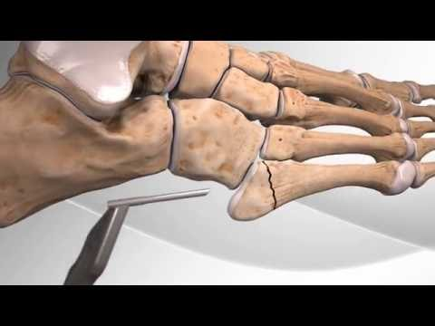 Metatarsal Fracture Repair with Arthrex® Jones Screw