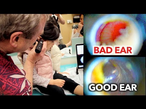 EAR INFECTION vs PERFECT EAR (Inside Look) | Dr. Paul
