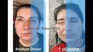 Yüz felci ameliyatı - Prof. Dr. Bülent DÜZ