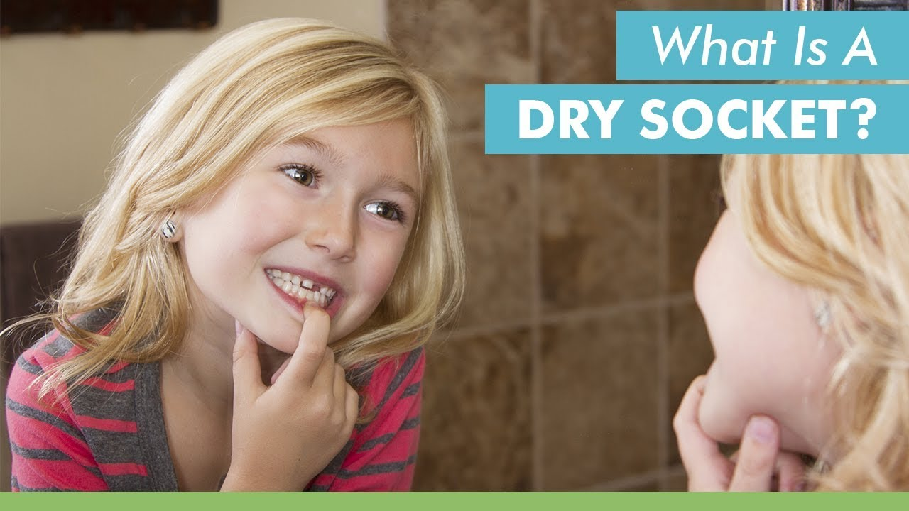 Prevent, Spot Symptoms, and Treat Dry Socket to Heal Faster