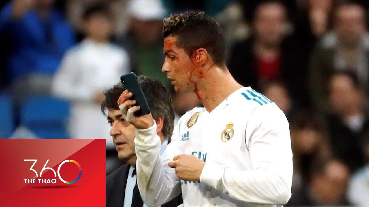 Ronaldo ôm mặt máu vì quá ham ghi bàn