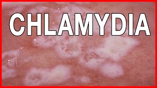 Signs and Symptoms of Chlamydia // How to Treat Chlamydia in Women and Men