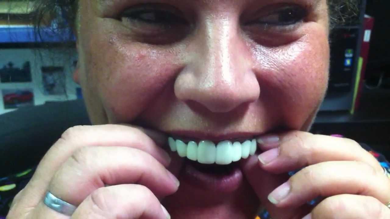 perfect smile veneers купить в краснодаре