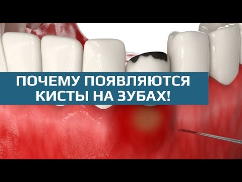 Киста зуба: причины образования и методы лечения