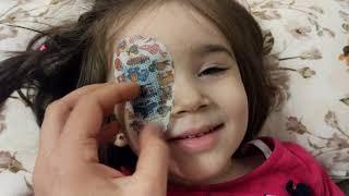 Zeynep'in Gözü Mikrop Kaptı Doktor Göz Damlası ve Göz Bandı Verdi Zeynep Çok Korktu Ama Geçti
