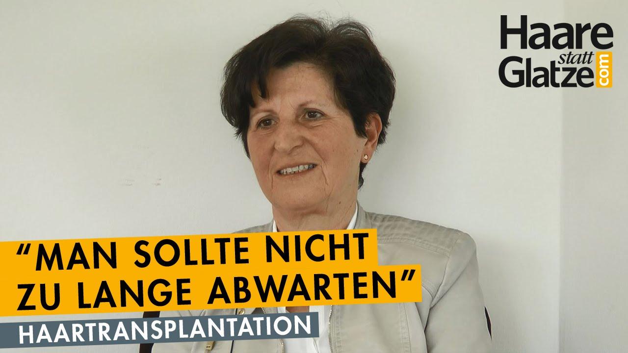 Vorhernachher Ansichten Haartransplantation Bei Einer Frau 50