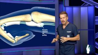 Trigger Finger Surgery
