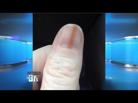 Melanoma on Your Nail?