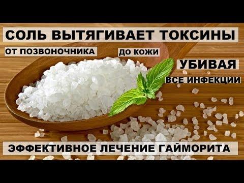 Лечение гайморита народными средствами - 10 способов