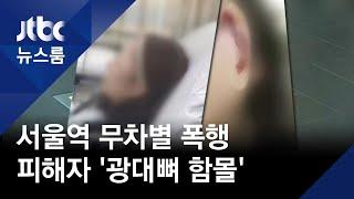 대낮 서울역서 '무차별 폭행'…피해자는 '광대뼈 함몰'…