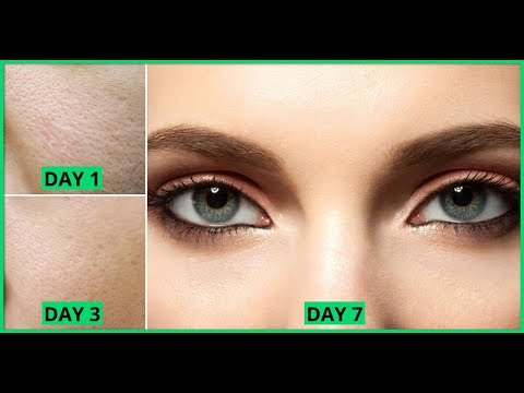 How To Get Rid Of Large Open Pores Permanently In 2 Days