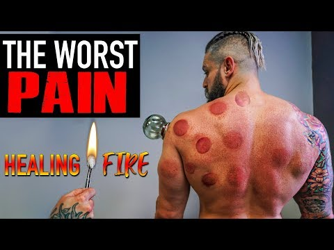 Cupping Is Trending, But Will it Help Recovery