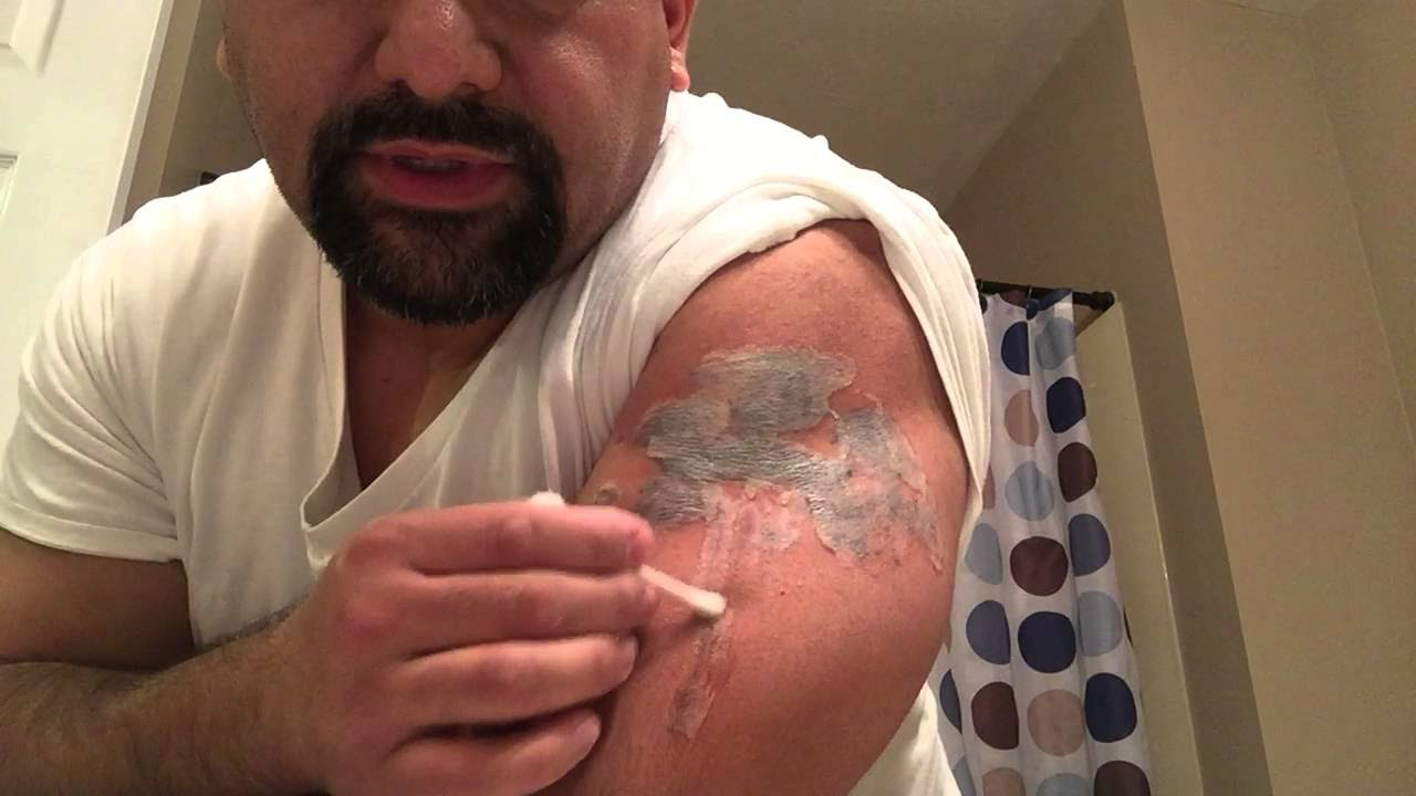 how to remove tattoos naturally at home  Natural Home Tattoo Removal Method  YouTube