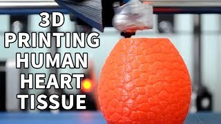Chicago-based biotech startup biolife4d announced its ability to bioprint human cardiac tissue. using 3d bioprinting technology, a new organ can be built cel...