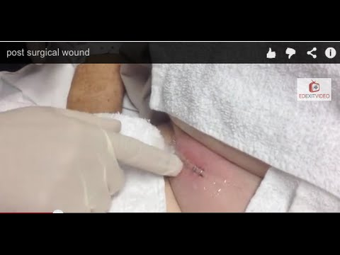 Large PostSurgical Wound Infection - Abscess