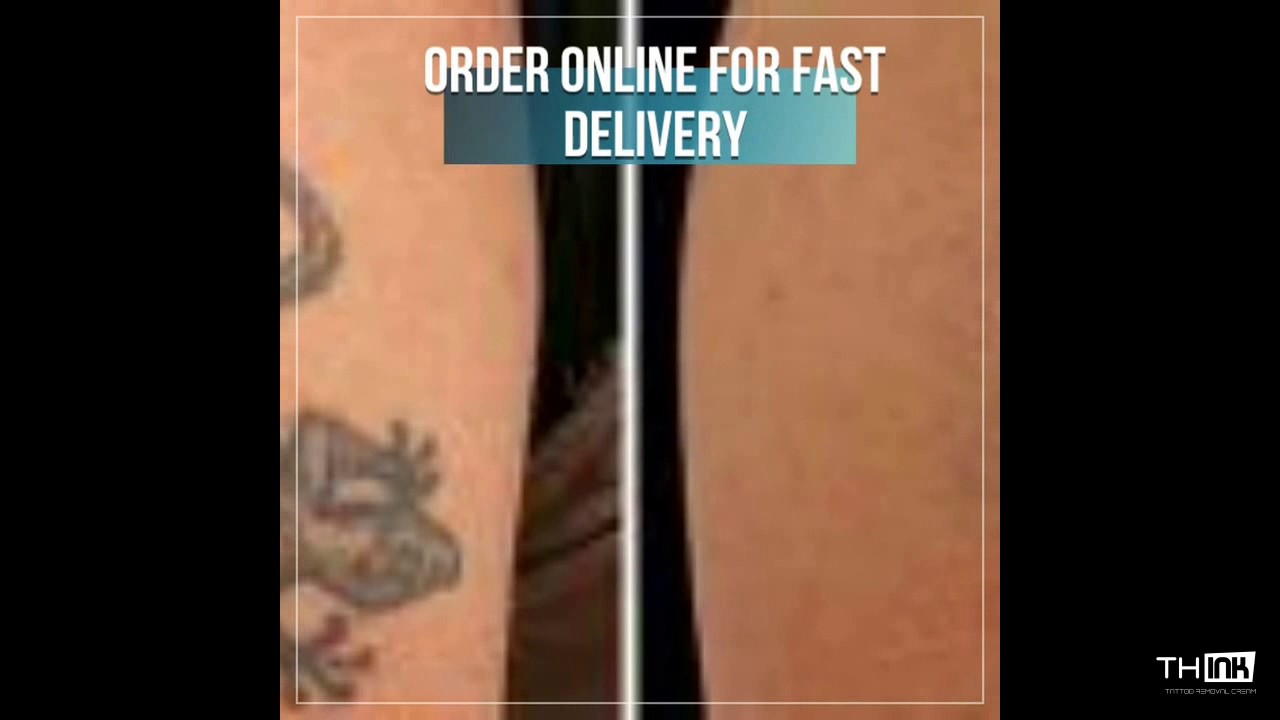 Tattoo Removal  Cream Removal together with  also Tat B Gone Tattoo Removal System 4 Month Supply likewise Tattoo Removal Cost   8 Factors That Affect Pricing furthermore pare Prices on Cosmetic Tattoo Removal  Online Shopping Buy Low in addition Inked up 100 Tattoo Removal Fading Oil   eBay furthermore thINK Tattoo removal Cream   YouTube besides  moreover Tattoo Removal Cream   Blast My Ink besides mus AdNGpDxj7EXNyuIX1Ow likewise 25  best ideas about Tattoo removal scars on Pinterest. on tattoo removal cream price