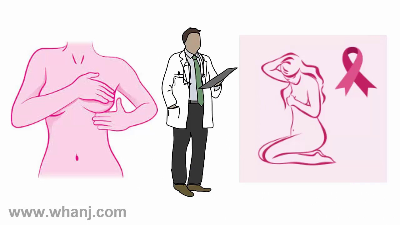 breast screening video