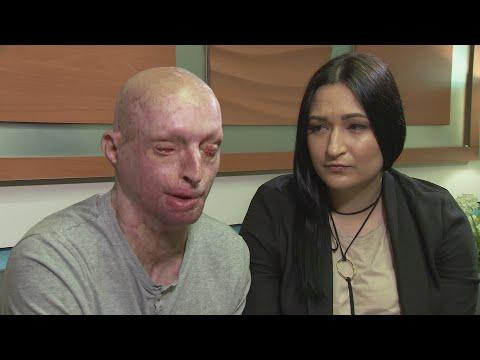 Acid victim finds love again with carer who nursed him