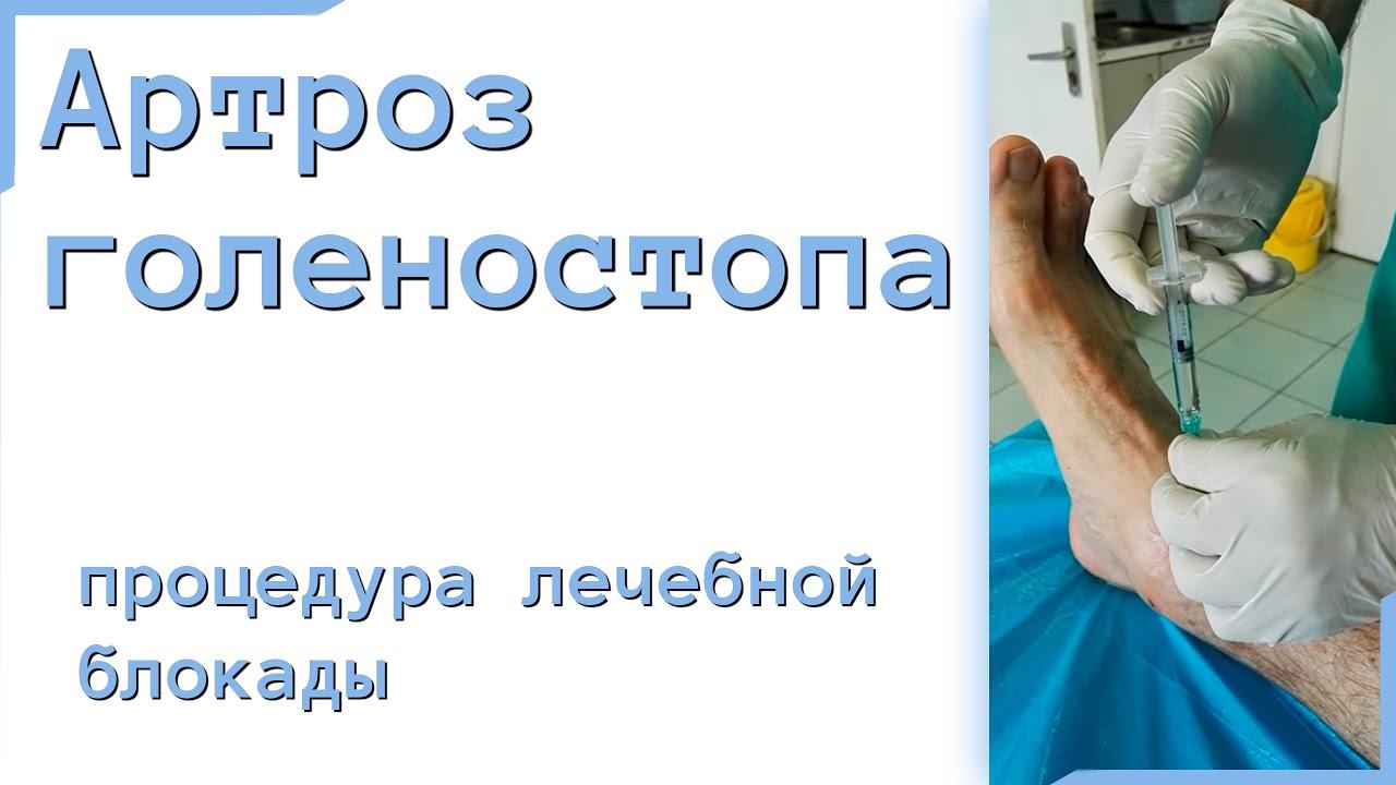 Блокада голеностопного сустава видео повреждения связок коленного сустава.миронов с.п.и др