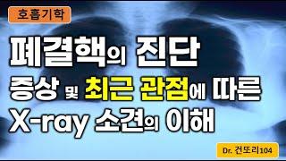 폐결핵 진단: 다양한/가장 흔한 증상, 최근 관점에 따…
