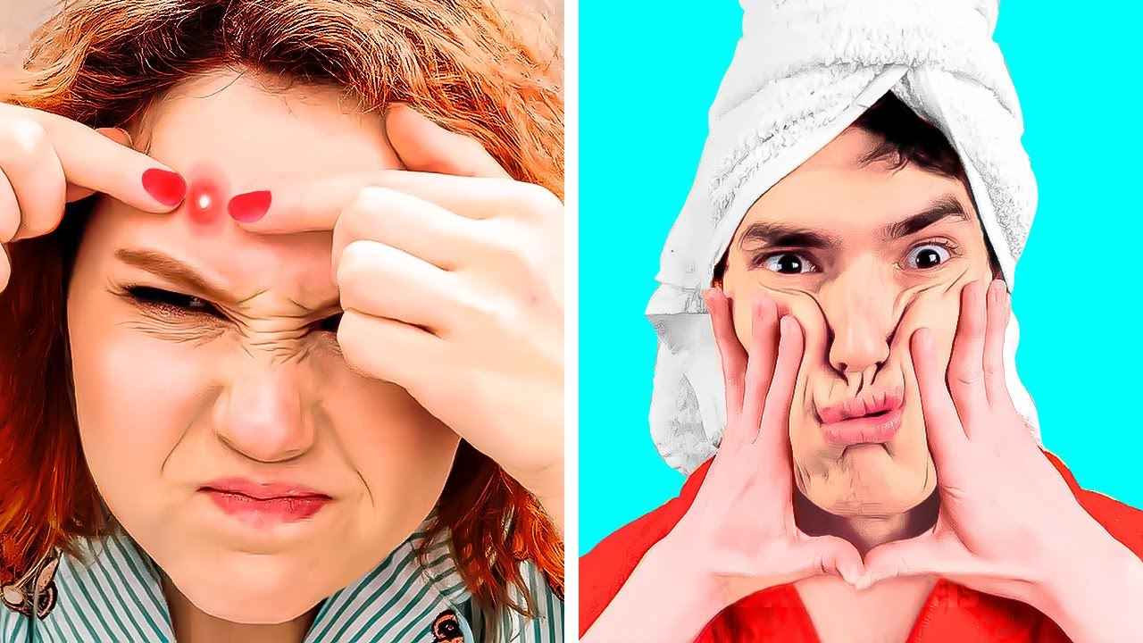 IF PIMPLES WERE YOUR FRIENDS || Funny Situations And Awkward Moments You Can Relate To
