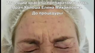 Инъекции красоты препаратом ботокс.(, 2016-10-31T06:38:40.000Z)