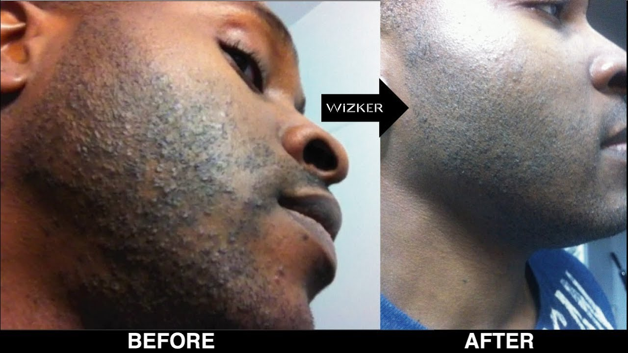 RAZOR BUMPS? WATCH THIS BEFORE YOU SHAVE!