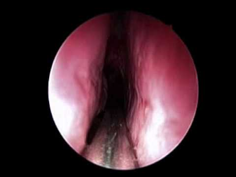 Endoscopic Assisted Powered Adenoidectomy Ramandeep Virk PGIMER Chandigarh
