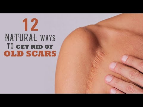 12-natural-ways-to-get-rid-of-old-scars-|-healthspectra