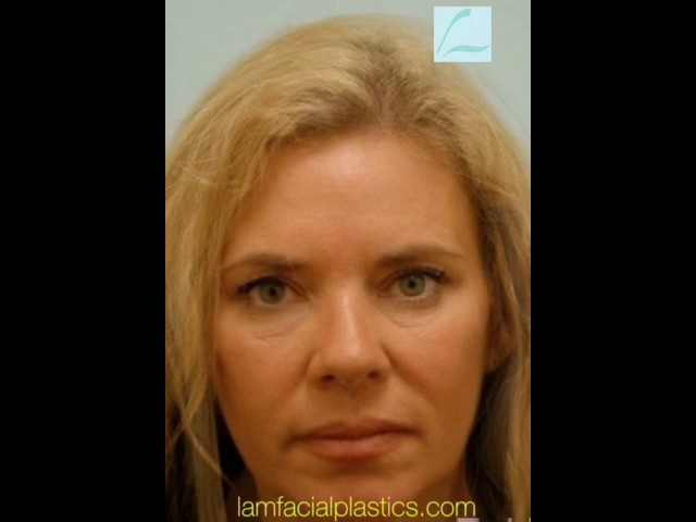 Dallas Fat Grafting & Blepharoplasty Video Transformation