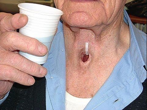 табакокурение - рак гортани , прощай голос