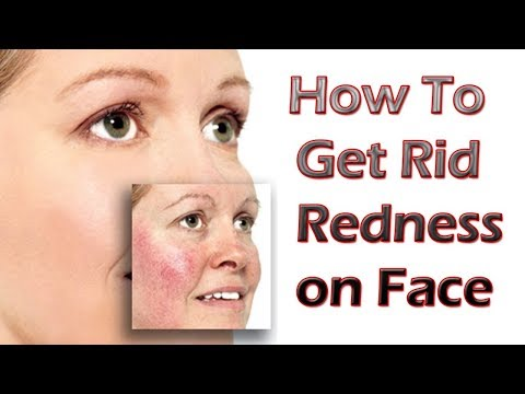 5 Natural Remedies To Get Rid Of Rosacea