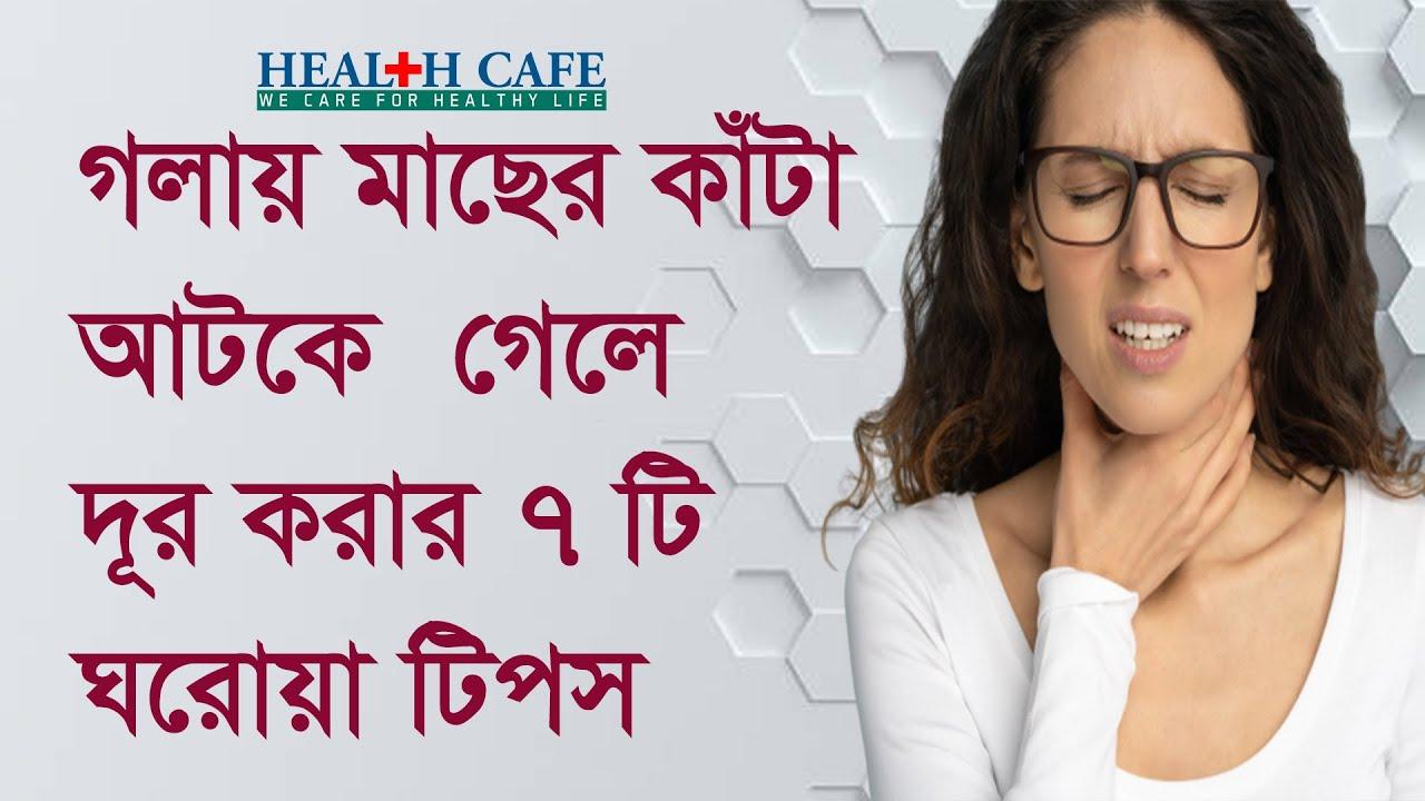 গলায় মাছের কাঁটা আটকে গেলে দূর করার ৭ টি ঘরোয়া টিপস   Health Cafe