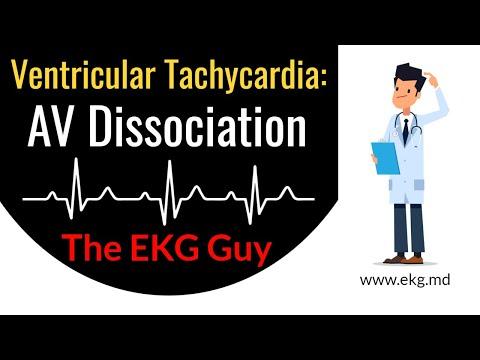 AV Dissociation In Ventricular Tachycardia - EKG / ECG Course | The EKG Guy - Www.ekg.md