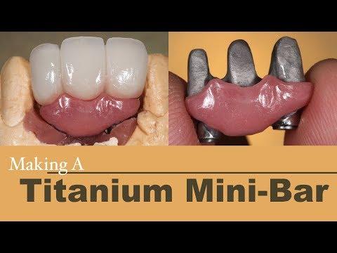Making A Titanium Mini-Bar With Porcelain Bridge | Dental Lab Learning
