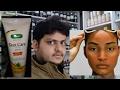 homeopathic medicine for sunburn tanning explain?
