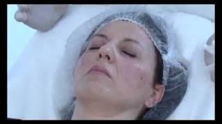 Проведение мезотерапии NCTF 135 НА