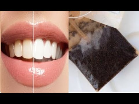 BRILLIANT WAYS TO USE THE SOGGY TEA BAGS FOR TEETH, EYES AND HAIR