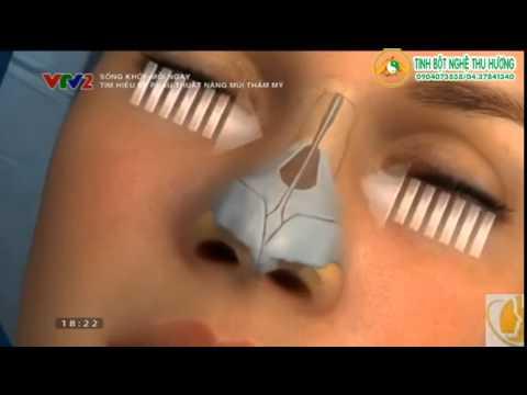 Thế nào là phẫu thuật nâng mũi thẩm mỹ S LINE?