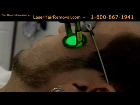 laser hair removal treatment face youtube