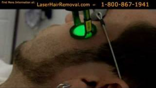Laser Hair Removal Treatment Face Thumbnail