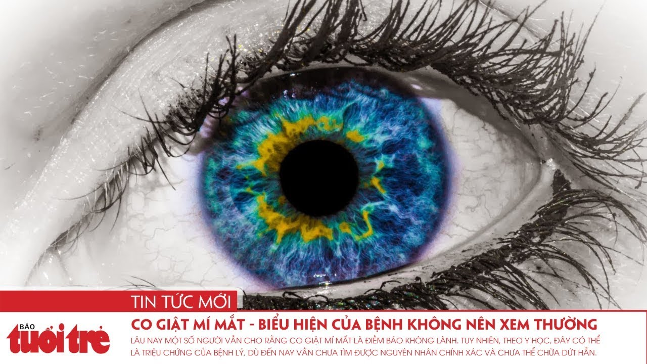 Co giật mí mắt – biểu hiện của bệnh không nên xem thường