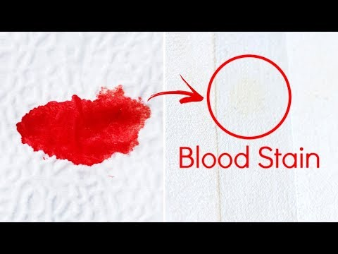 How To Get Blood Stains Out Of A Mattress Youtube