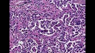 Histopathology Lung--Desquamative interstitial pneumonia