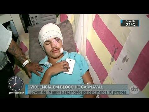 Jovem de 19 anos é espancado ao sair de bloco de carnaval no RS | SBT Brasil (19/02/18)