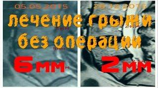 Грыжа позвоночника. Лечение без операции. С 6мм до 2мм(На этом видео наш пациент Анна Попова http://vk.com/id176567699 рассказывает о своем опыте лечения грыжи позвоночника,..., 2016-01-17T15:28:02.000Z)