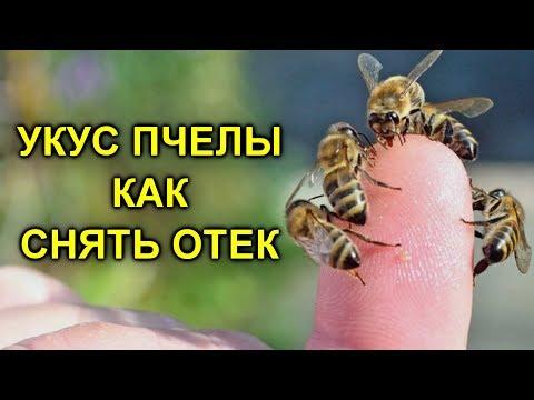 Вопрос: В каком случае пчела остаётся жить после того как ужалит?