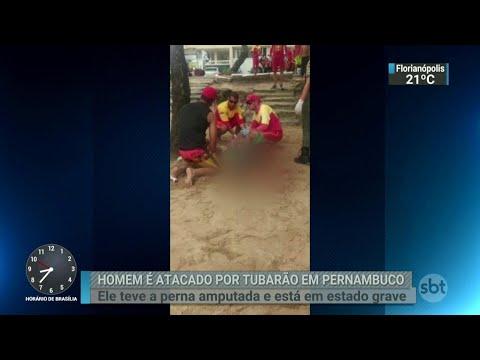 Banhista atacado por tubarão em praia de PE está em estado grave | SBT Brasil (16/04/18)
