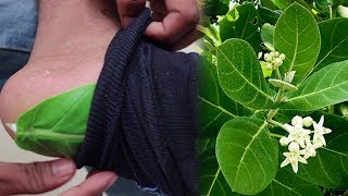 Only 2 Green Leaves Kills your Diabetes   Free Diabetes and Health