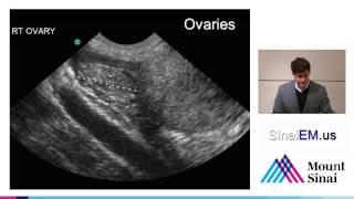 10 Ectopic Pregnancy